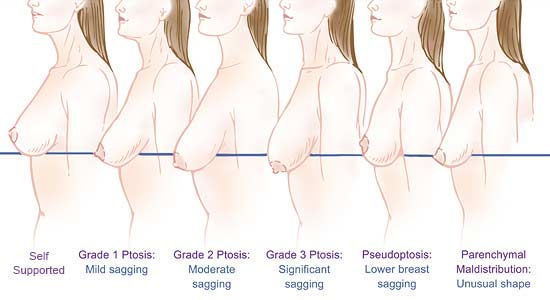 pendulous breast diagram